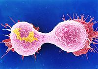 Destruir las células del cáncer con nanotecnología
